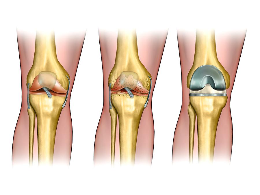 bigstock-Healthy-knee-anatomy-degenera-34362530
