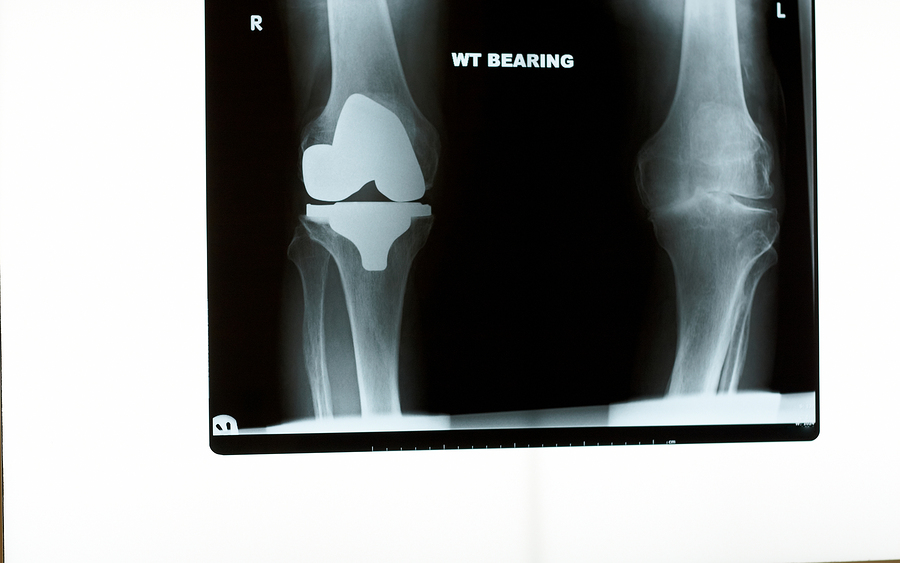X-ray of a knee replacement